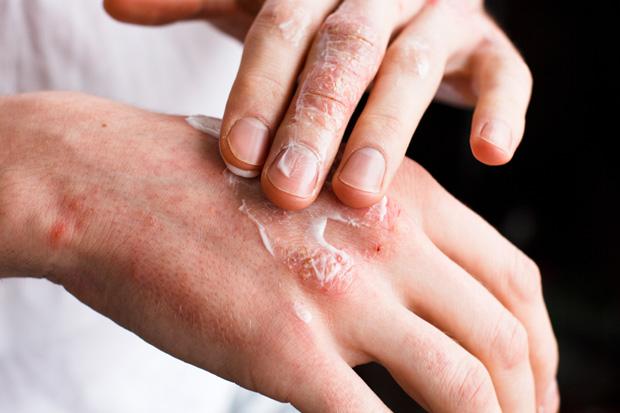 Como evitar as dermatoses ocupacionais